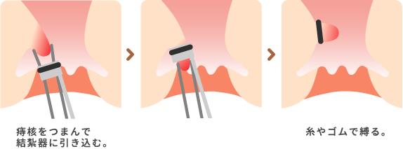 痔核の根元に糸やゴムをかけて徐々に締め、1~2週間かけて痔核を脱落させます。 傷は残りませんが、痔核の大きさ 、場所によっては処置ができない場合もあります。